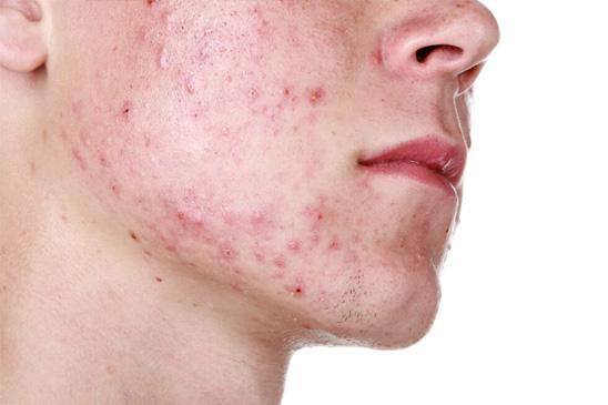 Acne en onzuivere huid