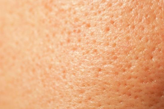 Grove porien en littekens
